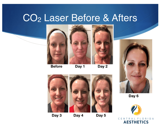 CO2 Laser Before and Afters